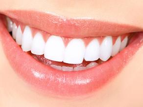 kosmetisk-tandvard